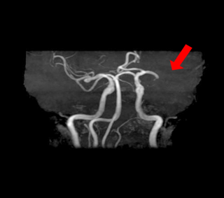 MRI・MRA検査