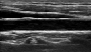 正常頸動脈 頸動脈エコー画像
