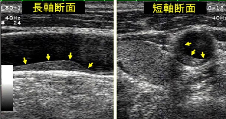 頸動脈プラーク画像 頸動脈エコー検査